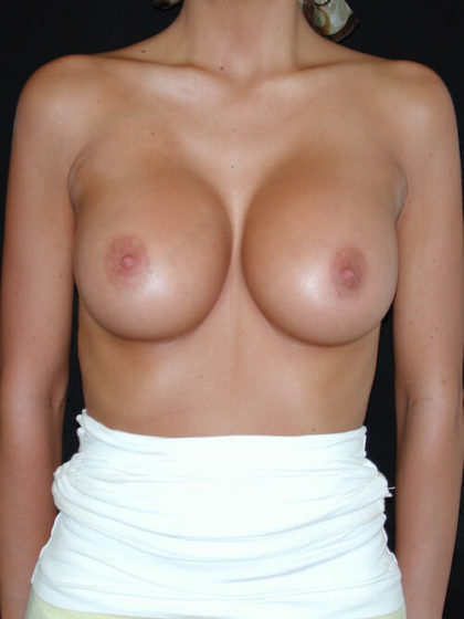 Breast Augmentation Before & After Patient #4102