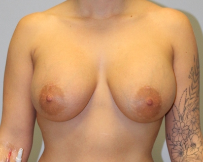 Breast Augmentation Before & After Patient #4131
