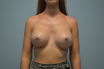 Breast Augmentation Before & After Patient #4139