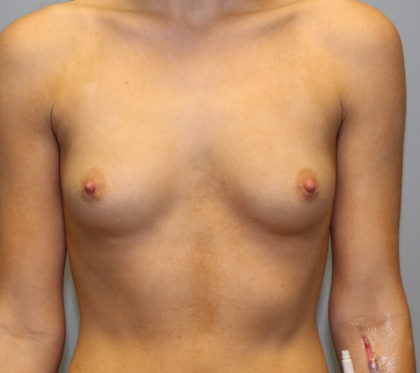 Breast Augmentation Before & After Patient #4151