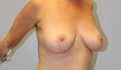 Breast Lift Before & After Patient #4112