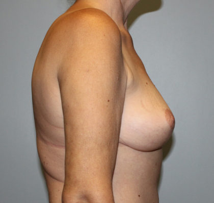 Breast Lift Before & After Patient #4144