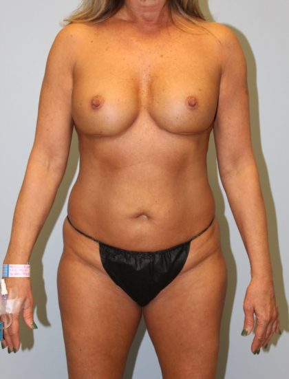 High Definition Mommy Makeover Before & After Patient #4122