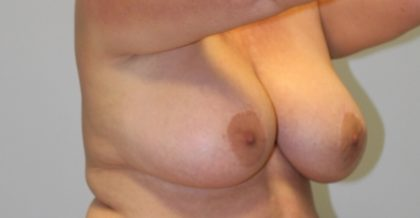 Breast Lift Before & After Patient #4200