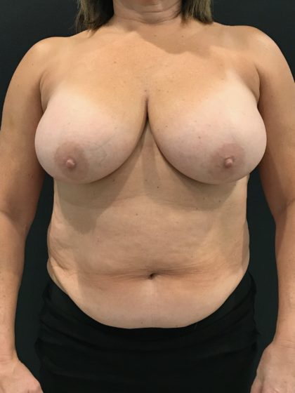 Breast Reduction Before & After Patient #4278