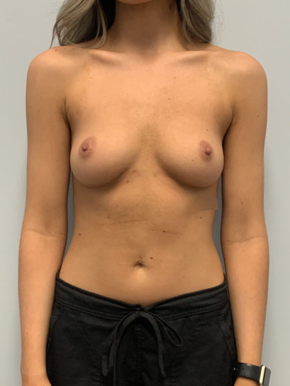 Breast Augmentation Before & After Patient #4251