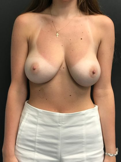 Breast Lift Before & After Patient #4269