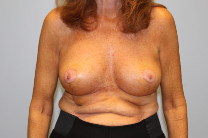 Breast Lift Before & After Patient #4299