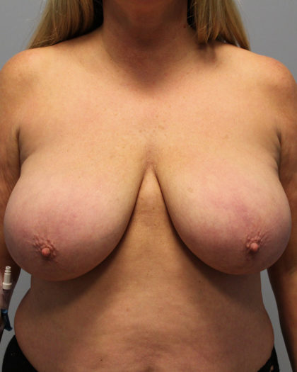 Breast Lift Before & After Patient #4285